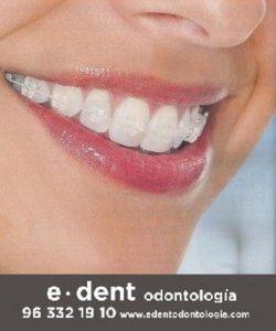 Ortodoncias en Valencia