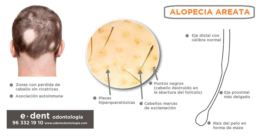 Alopecia areata infección dental y perdida de cabello